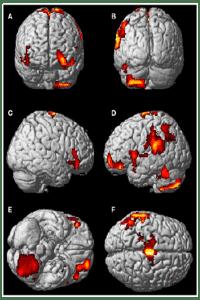 El cerebro en experiencias extracorporeas o viajes astrales
